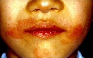 マンゴによるアレルギー性接触皮膚炎