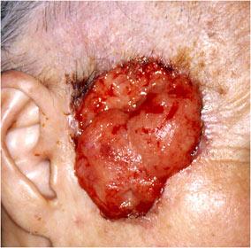 写真2:有棘細胞癌