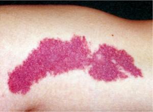 写真5:単純性血管腫(ポートワインステイン)