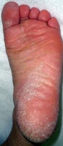 写真3:足白癬(角質増殖型)