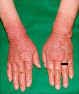 降圧剤による光線過敏型薬疹