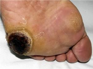 たこ(胼胝腫):糖尿病の人の皮膚壊死を伴ったたこ
