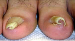 巻き爪:両方の親趾