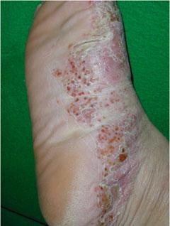 水虫 に 似 た 皮膚 炎 画像