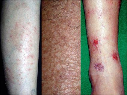 画像2 左から 乾皮症、皮脂減少性湿疹、貨幣状湿疹