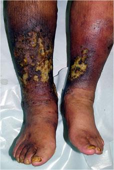 写真1:うっ滞性皮膚炎: